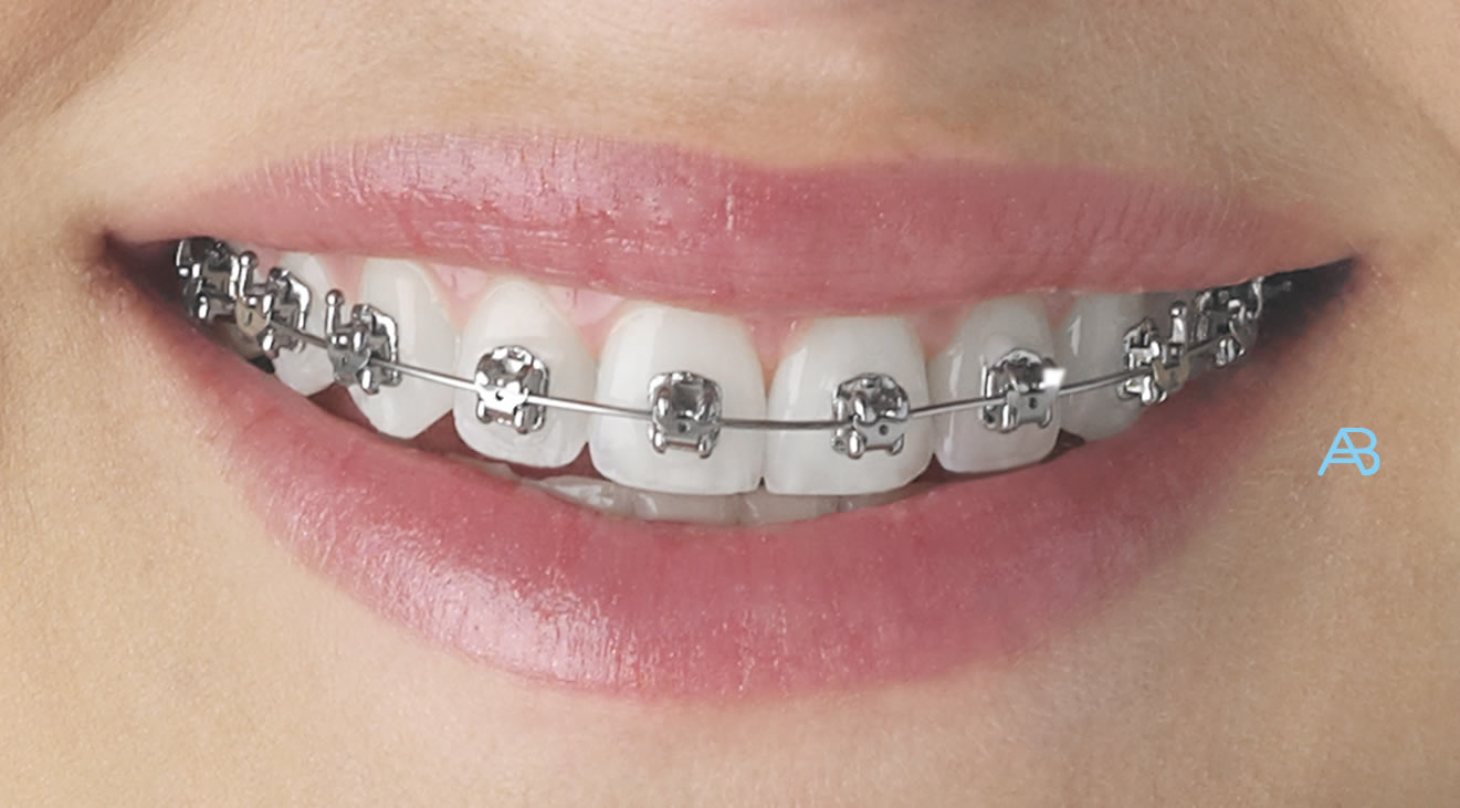 Braces Ace Braces Oregan Orthodontics Teeth