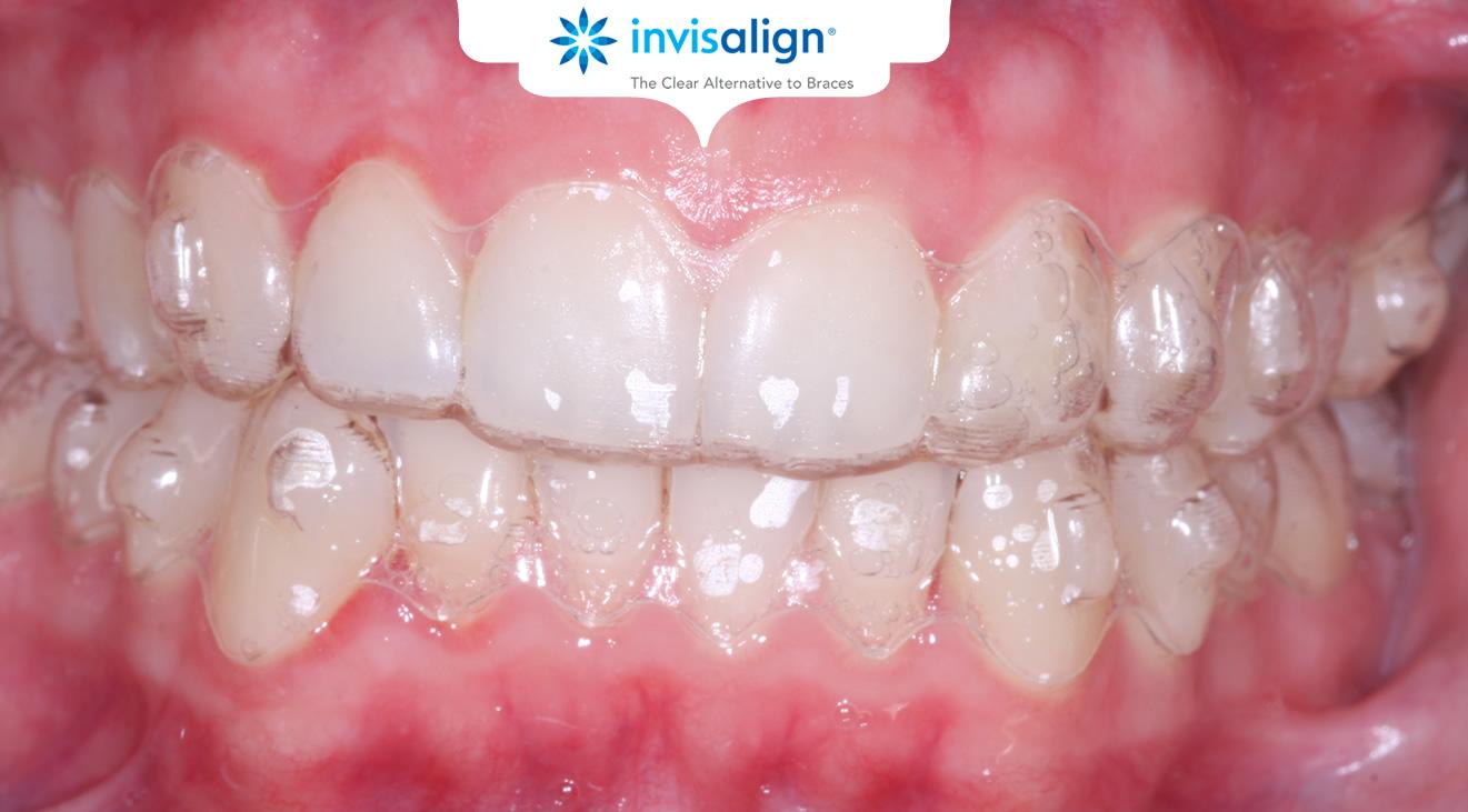 Braces - Ace Braces O'Regan Orthodontics | Teeth ...