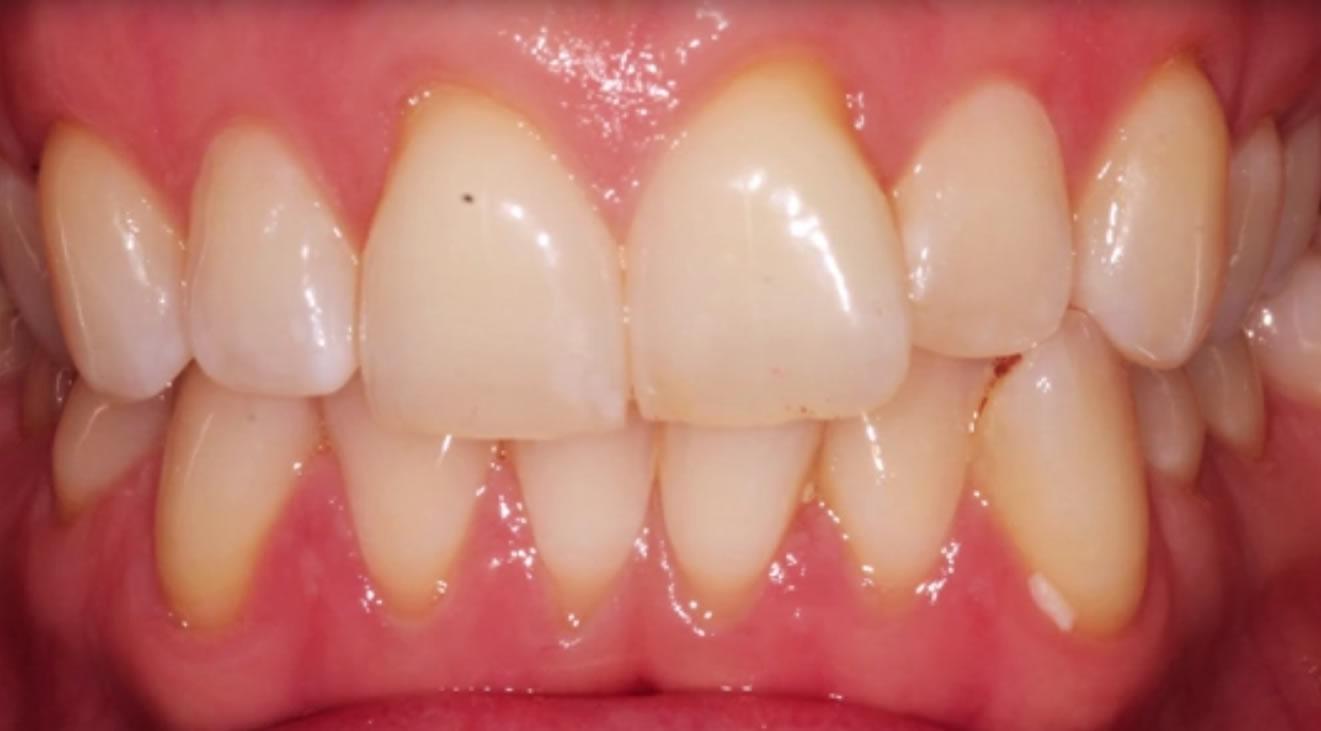 Braces - Ace Braces O'Regan Orthodontics | Teeth